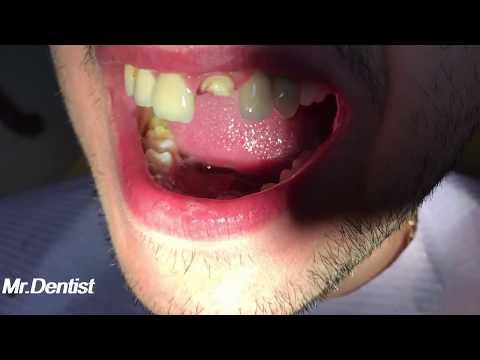 Dental Crown On Front Teeth - ALL CERAMIC CROWN !!