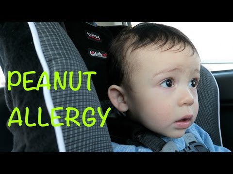 PEANUT ALLERGY | TheMilteez