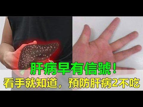 肝病早有預兆!醫生:警惕手上3個信號,遠離兩大食物,預防肝病惡化!