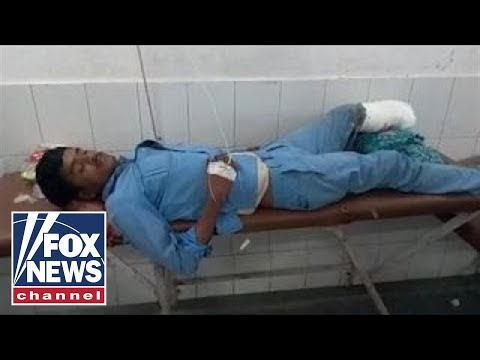 Warning, graphic content: Man uses amputated foot as pillow