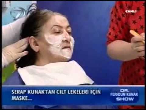 Dr. Feridun Kunak Show 12 Ocak B5 (Serap Hanımdan Cilt Lekeleri için Maske)