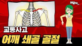 어깨 쇄골 골절 교통사고 후유증 합의금 보상 방법은?