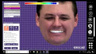 Dental Designer   Alexandre Matias EXOCAD + Scan de face Iphone XS Max+ Enceramento Diagnóstico