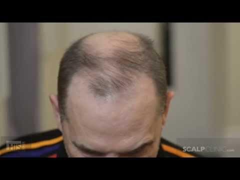 male-pattern-baldness-cure---scalp-micropigmentation-at-scalp-clinic