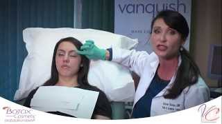 BOTOX® - The Vein & Cosmetic Center of Tampa Bay Thumbnail