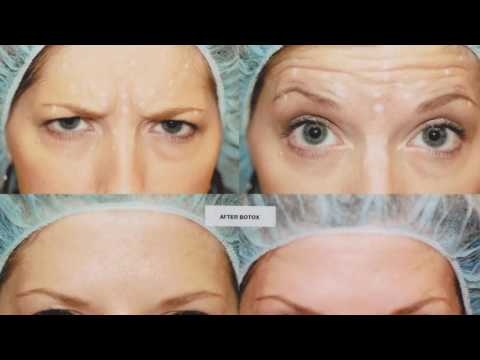 Inquietudes y Recomendaciones Sobre el Botox- Hogar Tv por Juan Gonzalo Angel