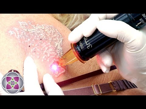 Laser Tattoo Removal Before and After Treatment