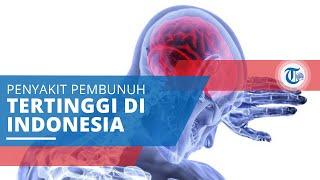Aneurisma otak atau disebut juga dengan aneurisma cerebral ini ialah kondisi dimana terdapat pelebar.