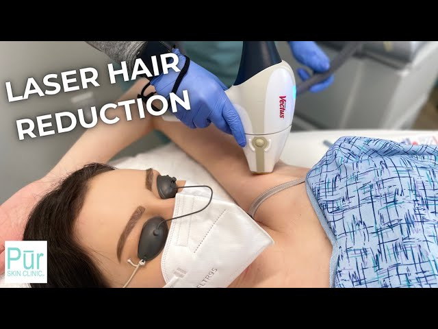 LASER HAIR REDUCTION TREATMENT | What is Laser Hair Reduction & What Can I Expect? | PUR Skin Clinic