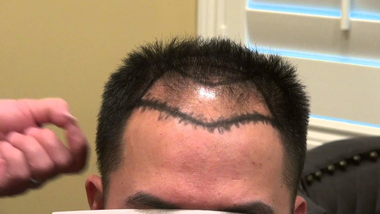 How To Keep Hairline From Receding