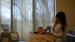 Laser IPL to Chest and Face to Remove Sun Damage with Dramatic Results in Delaware