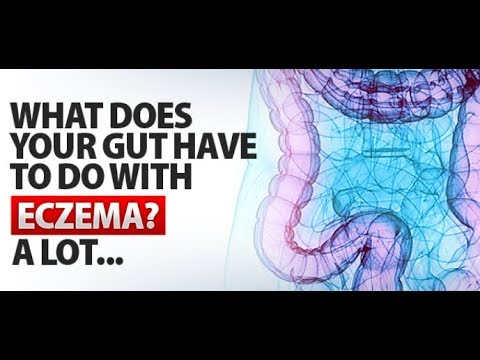 Your Gut Can Cause Eczema