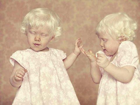 ЖЕСТЬ!!! Шокирующие Факты об Детей Альбиносов