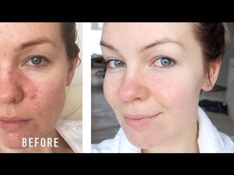 How I Cured My Rosacea Irritation Redness My Story Youtube