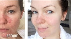hqdefault - Dr Weil Acne Cure
