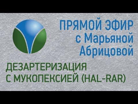 Дезартеризация с мукопексией HAL-RAR. Прямой эфир с Марьяной Абрицовой