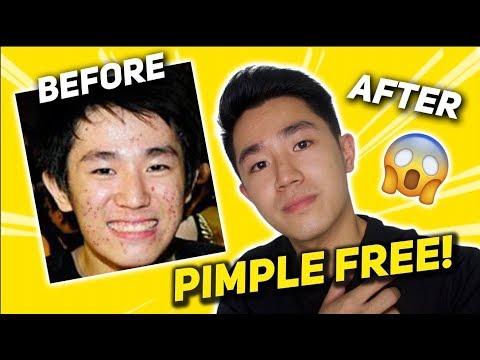 Paano Nawala Ang Pimples Ko?? (LIFE SAVING)