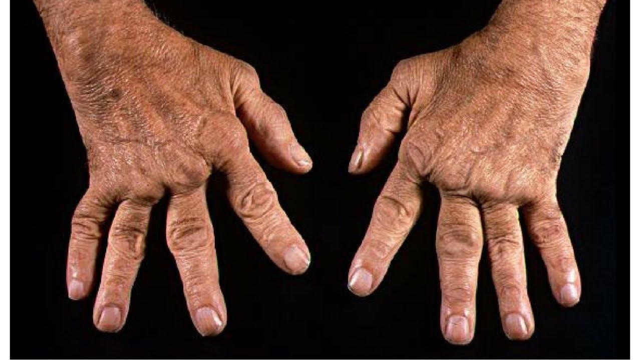 хрустят пальцы на руках фото связи этим