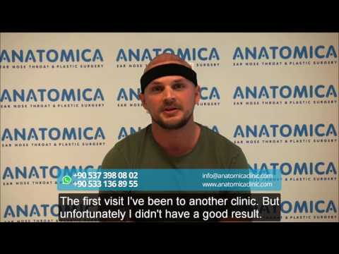 Patrick Lechleitner - Austria -  Revision of the Unfavorable Result from Another Clinic
