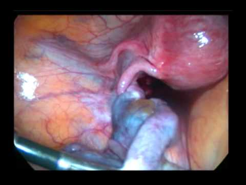effects of ovarian cyst