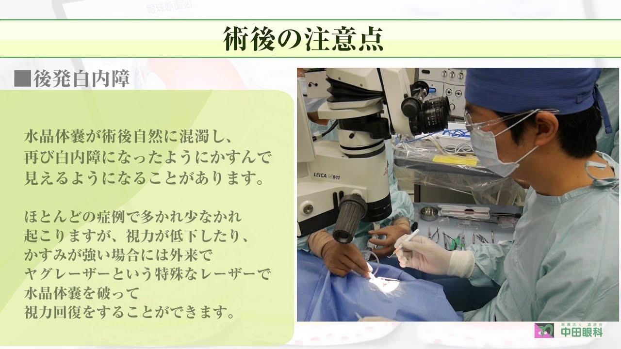 注意 の 手術 白内障 後