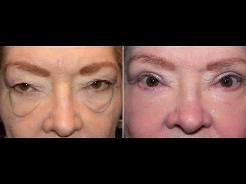 Tampa Plastic Surgeons l Eyelid Surgery Tampa l Laser