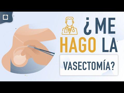 VIDEO: Ventajas y desventajas de la vasectomÍa