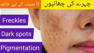 How to Remove Freckle,Dark Sp๐ts Naturally\\Get Rid Of Pigmentation and Melasma With Home Remedy