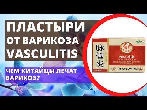 Пластырь от варикоза / варикозного расширения вен Васкулитис Vaskulitis Васкулит