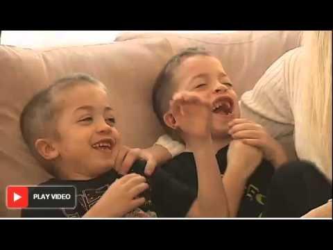 Hurler syndrome - YouTube