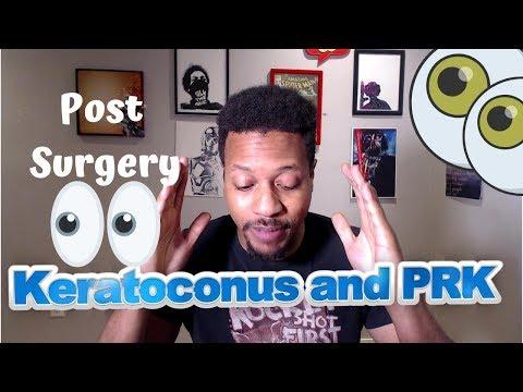 Keratoconus: Post PRK Surgery