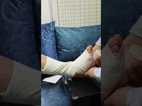 이룸병원 교육영상 하지03-1.발목 붕대 감는방