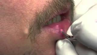 Venous Lake of Lip and Lip Freckle Removal with Iridex Laser