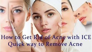 How to Get Rid of Acne With ICE | quick way to remove acne | ice on acne scars