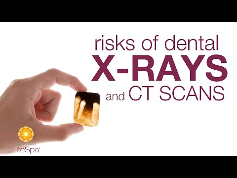 Risks of Dental X-Rays and CT Scans | John Douillard's LIfeSpa