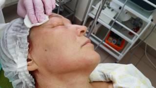 Газовые уколы 1 - Карбокситерапия. После этого - положим свето-диодную маску
