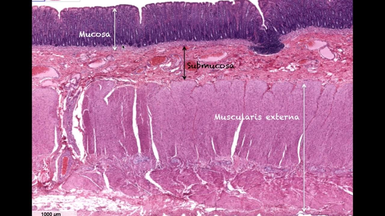 Histology of the Large Intestine - Anatomy - YouTube