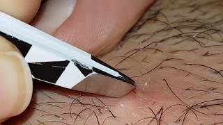 Plucking infected hair follicle