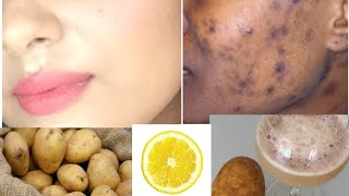How to Remove BLACK SPOTS , DARK SPOTS & ACNE SCARS on face |ONLY in 5 days | TANUTALKS |