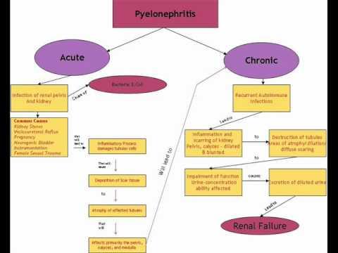 concept map pyelonephritis_Tey.wmv - YouTube
