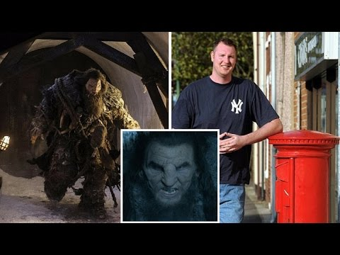 Neil Fingleton  Britain's tallest man at 7ft 7in dles of heart failure