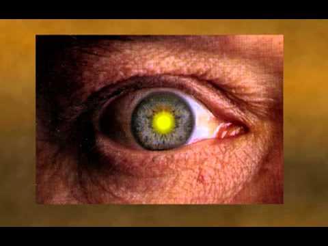 diabetes ojos dilatados
