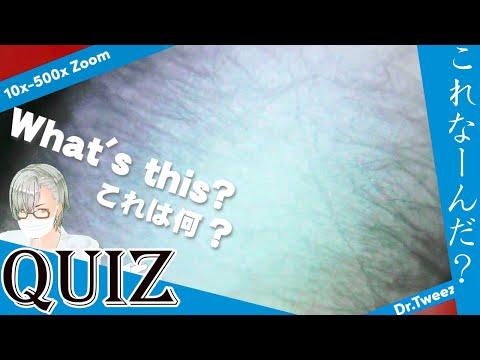9002 [200x Zoom] QUIZ What is this? クイズ これ何だ? Dr. tweezers 毛抜き先生の角栓や毛根