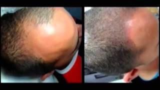 Micropigmentação Capilar - Micropigmentação do couro cabeludo por Elan-Mello - o 1º o nº1