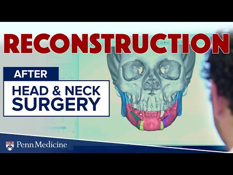 reconstruction-after-head-and-neck-surgery- -penn-medicine-ent