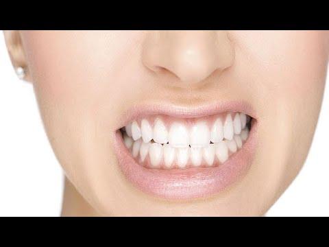علاج الجز على الأسنان اوما يسمى -صرير الأسنان-  - نشر قبل 2 ساعة