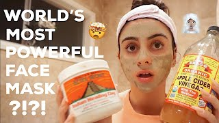 WORLD'S MOST POWERFUL FACE MASK FOR ANCE PRONE SKIN | AZTEC HEALING CLAY MASK