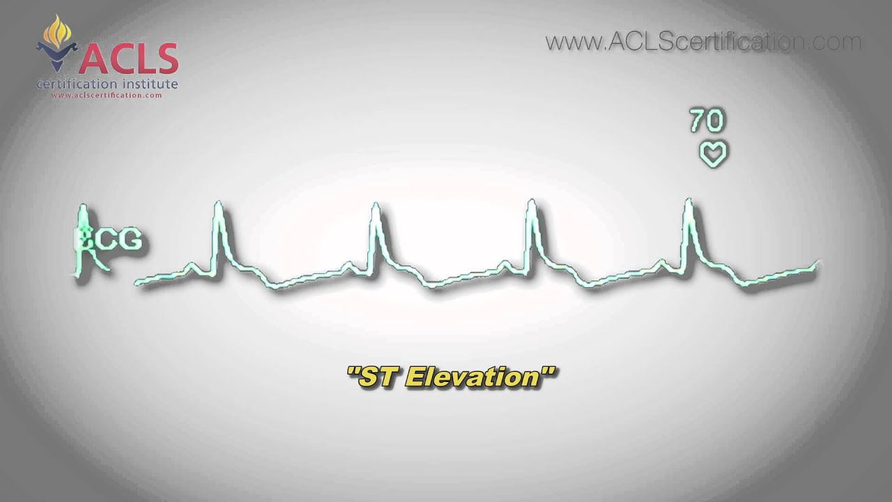 St elevation by acls certification institute youtube st elevation by acls certification institute xflitez Image collections