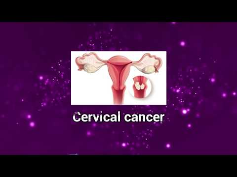 Cervical cancer: Symptoms, causes, stages, and treatment I Patient Education I MIC