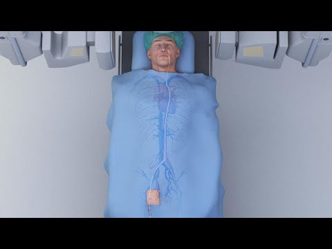 Strokes Happening to People in Their 20s? Mp3